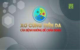 xo-cung-tren-da-can-benh-khong-de-chuan-doan